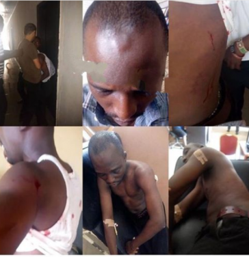 """'Oyinbo' Man Stabs Nigerian Man Multiple Times In Osun For Not Adding """"Mr"""" To His Name [Photos] 2"""