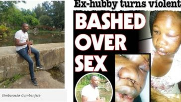Woman Beaten To Pulp By Ex-husband For Refusing To Have Sex With Him During Visit [Photos] 4
