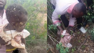 10-Month-Old Baby Girl Rescued After Being Buried Alive By Her Mother [Photos] 1