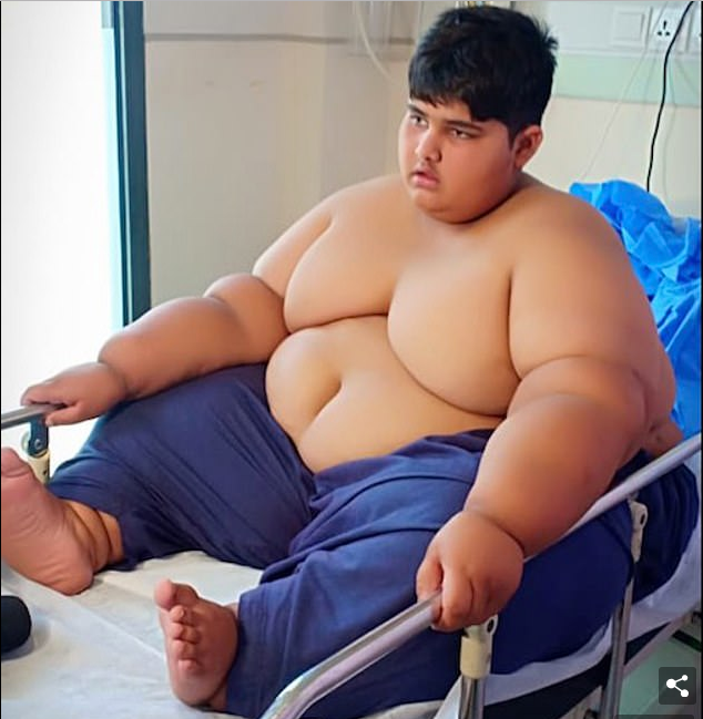 World's Fattest Child Who Is 10 Years Old Set To Undergo Weight Loss Surgery [Photos] 2