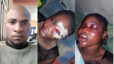 Nigerian Man Beats His Fiancée To Stupor Three Months To Their Wedding [Photos] 1