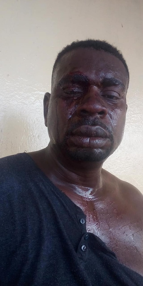 Veteran Musician, Baba Fryo Allegedly Beaten To Pulp By Soldiers In Lagos [Photos] 1