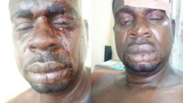 Veteran Musician, Baba Fryo Allegedly Beaten To Pulp By Soldiers In Lagos [Photos] 2