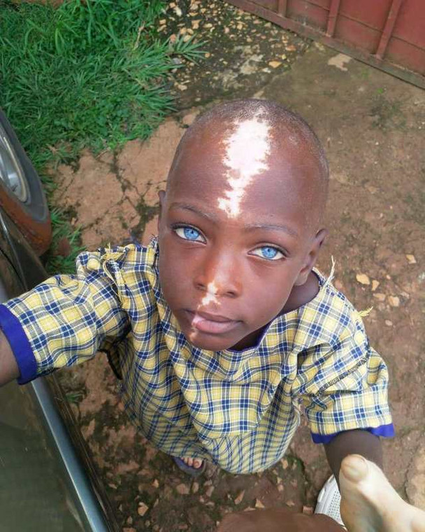 This Little Boy Was Abandoned By His Mother Because Of His Unique Birth Mark [Photos] 2