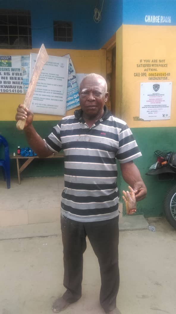 Man Cuts Off Hand Of 11-Year-Old Boy Whom He Claimed Wanted To Steal His Fish In Lagos [Photo] 1