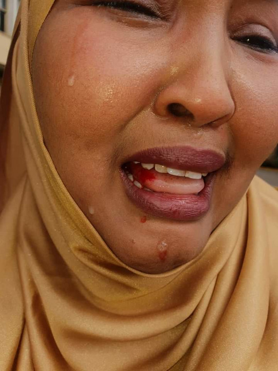 Female Lawmaker Cries Bitterly After She Was Beaten Up By Male Colleague At Parliament Building 2