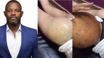 Okey Bakassi Reacts To Video Of Lady Undergoing Butt Enlargement With Clay Pot [Video] 11