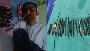 Doctors Remove 33 Sharp Objects Including Razors And Knives From Stomach Of A 30-Year-Old Man 12
