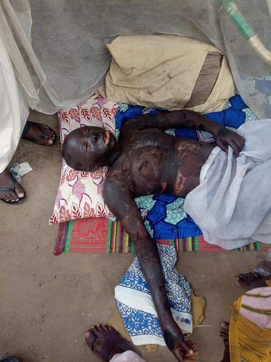 17-Year-Old Zamfara Girl Sets Herself Ablaze Over Fiance's Inability To Pay N17,000 Dowry 2