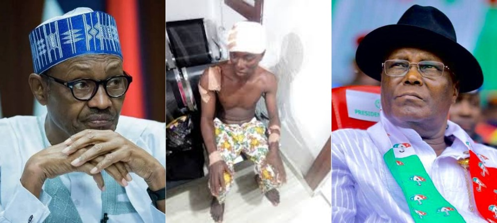 Angry PDP Supporter Stabs APC Loyalist Multiple Times For Celebrating Buhari's Tribunal Victory [Photos] 1