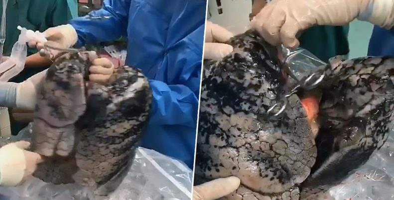 Shocking Pictures Shows Black Lungs Of Man Who Smoked 20 Sticks Of Cigarettes Daily For Over 30 Year 1