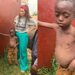 Danish Aid Worker, Anja Ringgren Loven Rescues Another Abandoned Malnourished Boy [Photos] 27