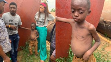 Danish Aid Worker, Anja Ringgren Loven Rescues Another Abandoned Malnourished Boy [Photos] 8