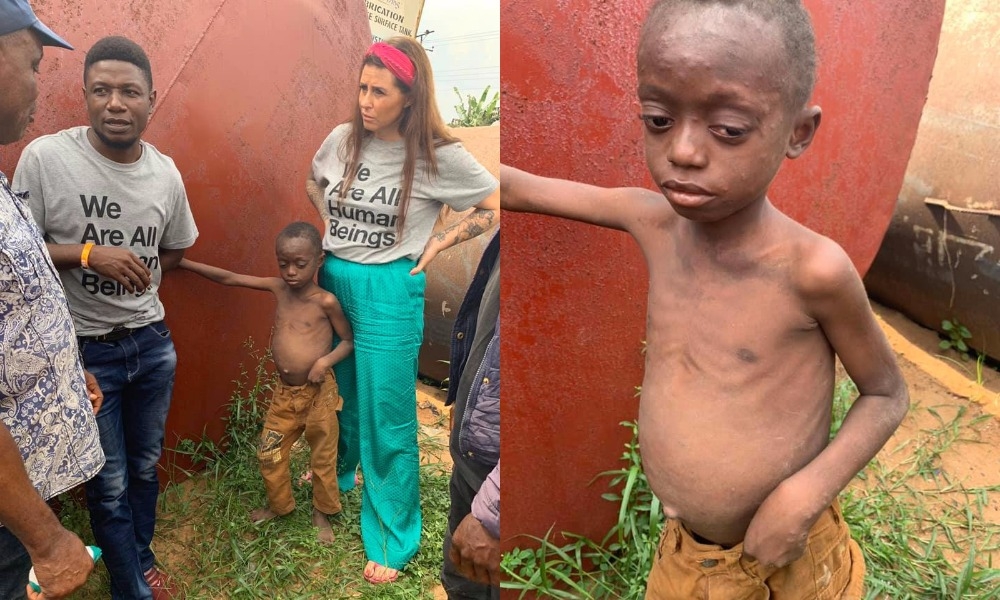 Danish Aid Worker, Anja Ringgren Loven Rescues Another Abandoned Malnourished Boy [Photos] 1