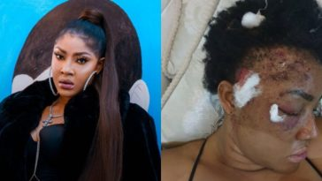 """Anyone Making Up Fake Stories About My Attack Will Be Arrested"" - Angela Okorie Warns 4"