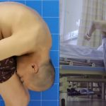Medical Condition Makes Man Spend 28 Years Of His Life With His Head Stuck To His Knees 27