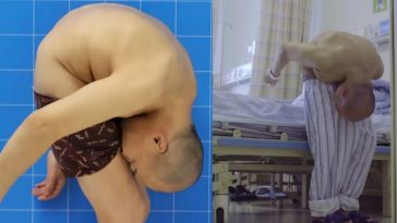 Medical Condition Makes Man Spend 28 Years Of His Life With His Head Stuck To His Knees 1