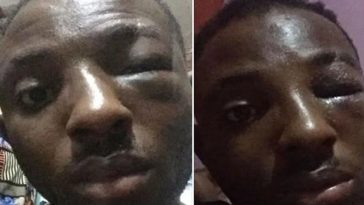 Girlfriend Mobilize Area Boys To Beat Up Boyfriend Who Mistakenly Slapped Her [Photos] 7