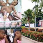 Nigerian Hospital Announces First Successful Separation Of Conjoined Twins After 16 Months Surgery 27