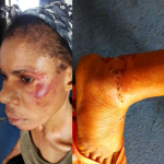 Police DPO Beats And Strips 2 Sisters Naked, Then Arrests Their Widowed Mother In Delta 27