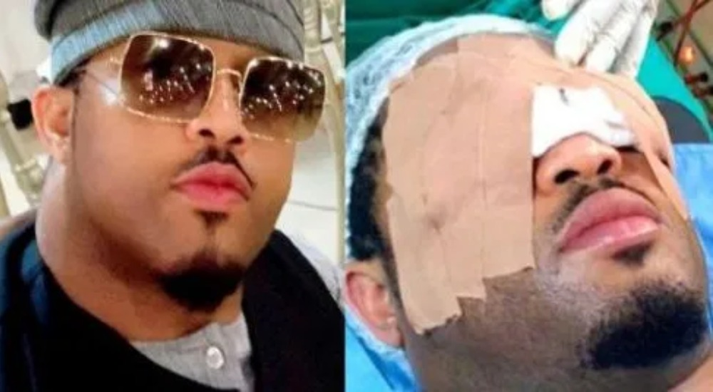 Actor, Mike Ezuruonye Undergoes Surgery Following Strange Growth On His Both Eyes 1