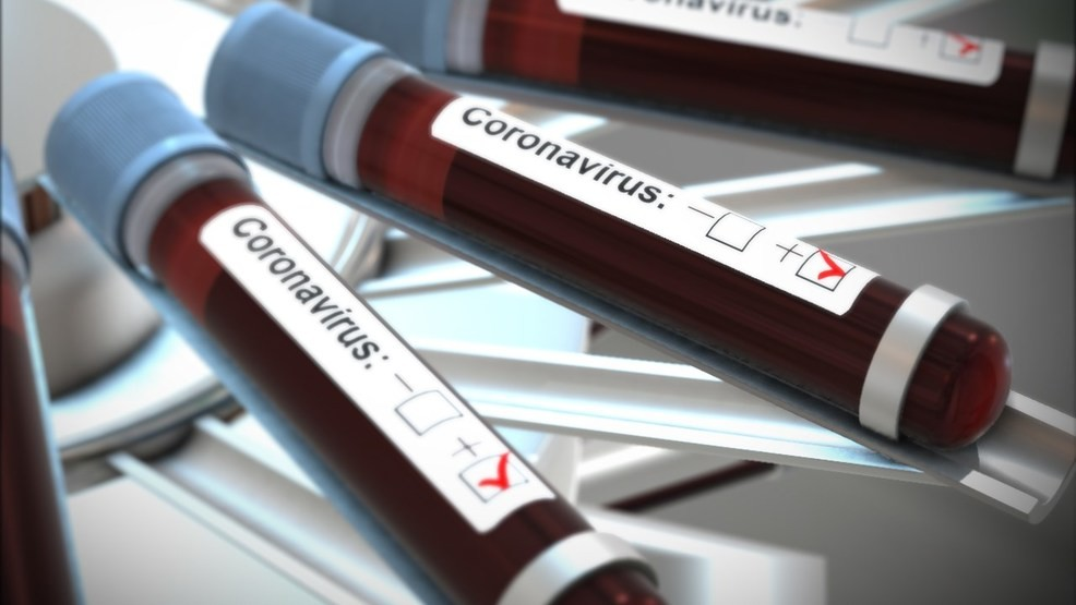 """128 In Lagos, 34 In Abuja"" - Nigeria Records 315 New Coronavirus Cases As Total Rises To 12,801 1"