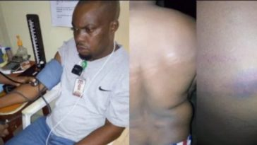 COVID-19 Lockdown: Soldiers Allegedly Brutalizes NTA Staff Going Home From Work In Ondo [Photos] 11