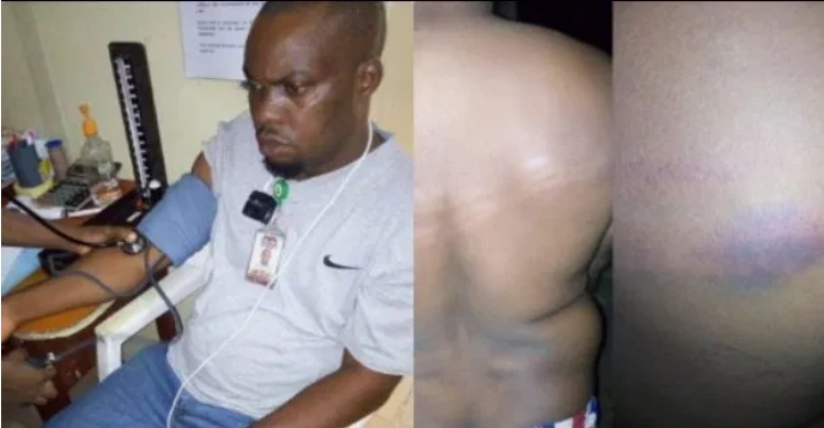 COVID-19 Lockdown: Soldiers Allegedly Brutalizes NTA Staff Going Home From Work In Ondo [Photos] 1
