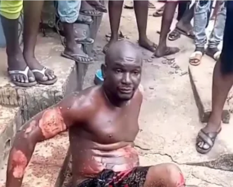 Man Sets Himself On Fire After Stabbing His Mother During An Argument In Imo [Photos/Video] 1