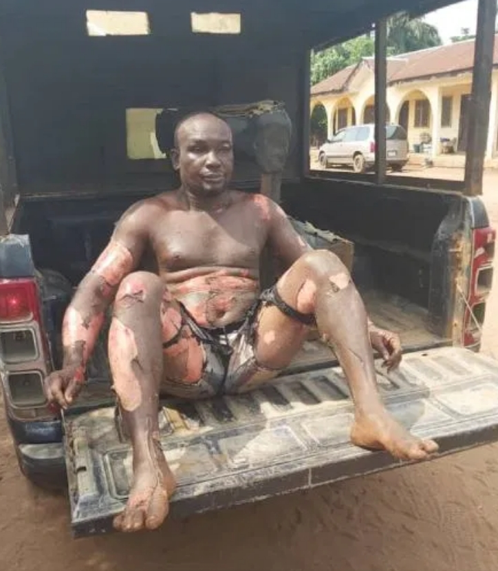 Man Sets Himself On Fire After Stabbing His Mother During An Argument In Imo [Photos/Video] 2