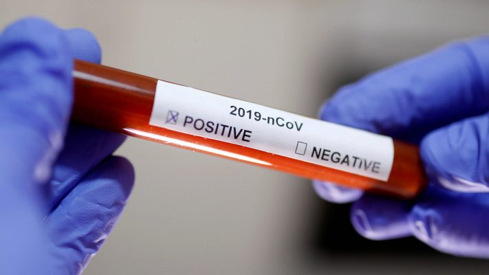 """""""34 In Lagos, 15 In Abuja"""" - Nigeria Records 64 New Cases Of Coronavirus As Total Rises To 1337 1"""