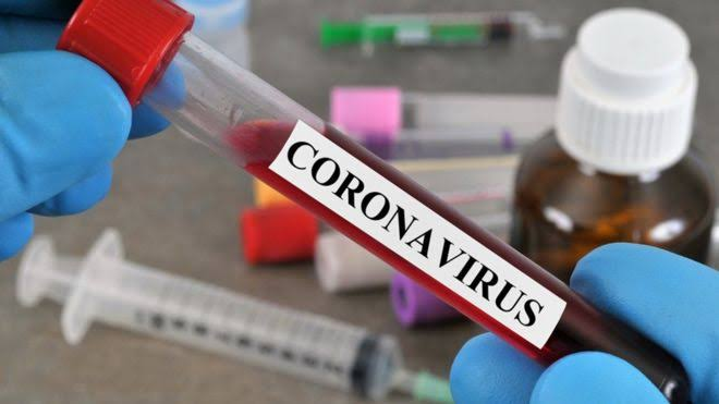 """84 In Lagos, 31 In Rivers"" - Nigeria Records 155 New Coronavirus Cases As Total Rises To 59,738 1"