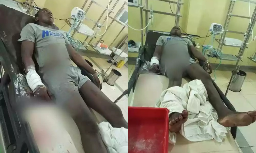 SARS Operatives Shoot 17-Year-Old Boy While Searching For Kidnappers In Abuja [Photos] 1