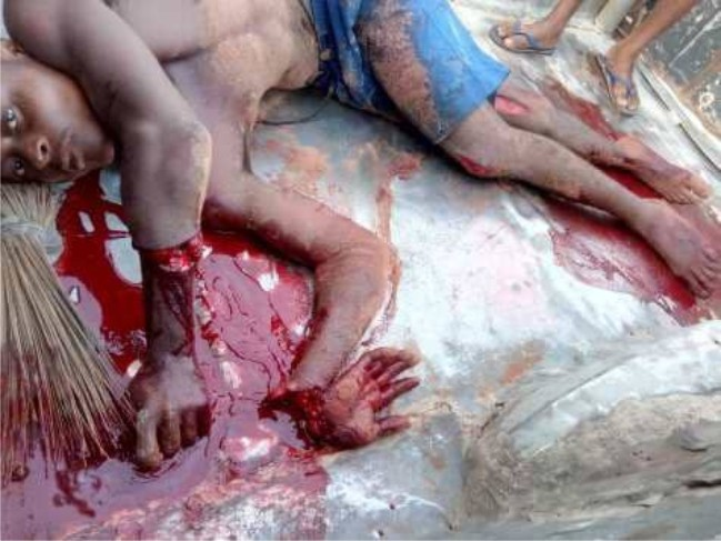 Young Man Butchers His Twin Brother During Fight Over Girlfriend In Imo State [Graphic Photos] 2