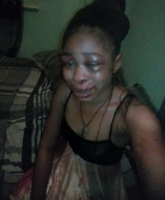 Man Brutalizes His Wife For Refusing To Abort Her Three-Month-Old Pregnancy In Ondo State [Photos] 2