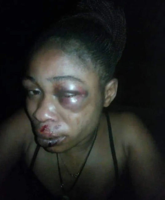 Man Brutalizes His Wife For Refusing To Abort Her Three-Month-Old Pregnancy In Ondo State [Photos] 3