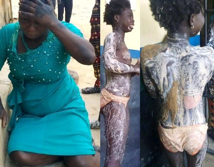 Fleeing Woman Arrested After Pouring Hot Water On Young Girl's Body In Kogi 1