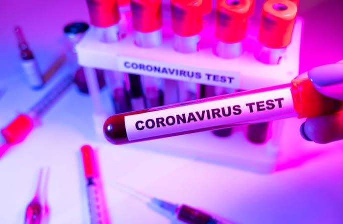 """113 In Lagos, 21 In Kaduna"" - Nigeria Records 163 New Coronavirus Cases As Total Hits 60,266 1"