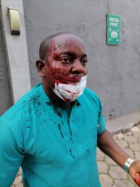 Enugu Doctors' Election Turns Bloody As Thugs Invades Voting Centre 3