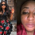 """""""I Am Not Trying To Bleach"""" - Ini Edo Cries After Wrong Skincare Product Messed Up Her Face 27"""