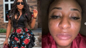 """I Am Not Trying To Bleach"" - Ini Edo Cries After Wrong Skincare Product Messed Up Her Face 5"