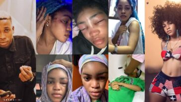 Davido's Artist, Lil Frosh Accused Of Beating His Girlfriend To Pulp, Recording Her Nakedness [Photos/Video] 7