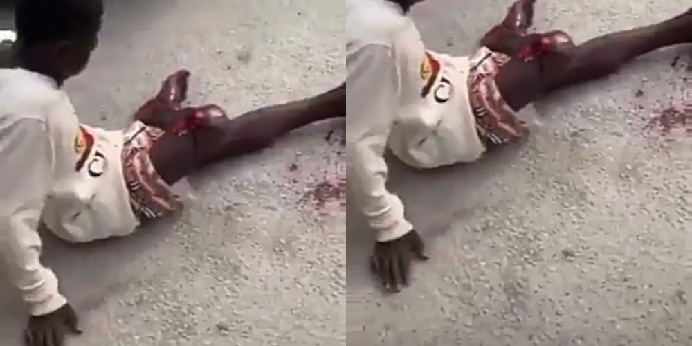 Police Allegedly Shoots Young Boy On His Leg During #EndSARS Protest In Delta [Video] 1