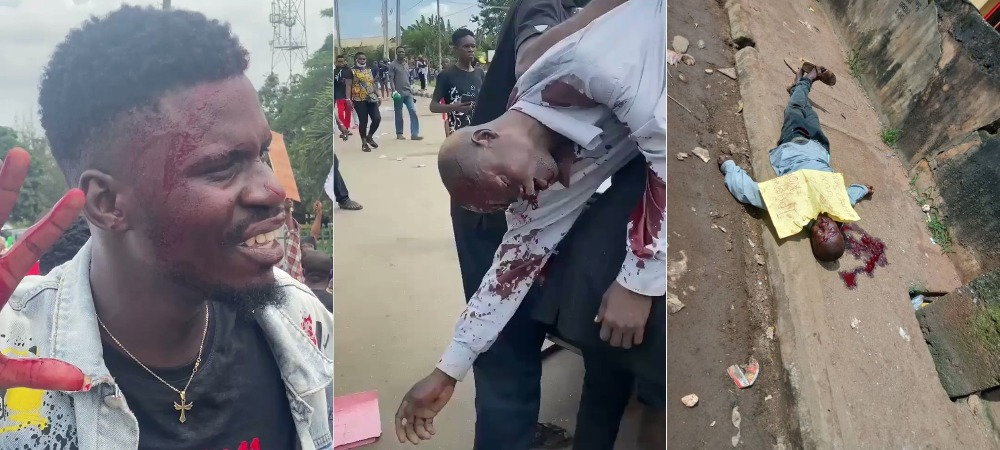 One Dead As Armed Thugs Attacks #EndSARS Protesters With Guns And Machete In Benin [Video] 1