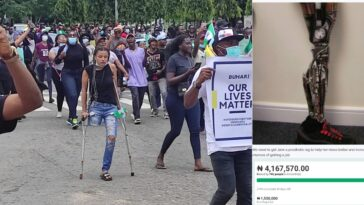 Nigerians Raise Over N4m For #EndSARS Protester In Need Of N1.5m Prosthetic Leg 2