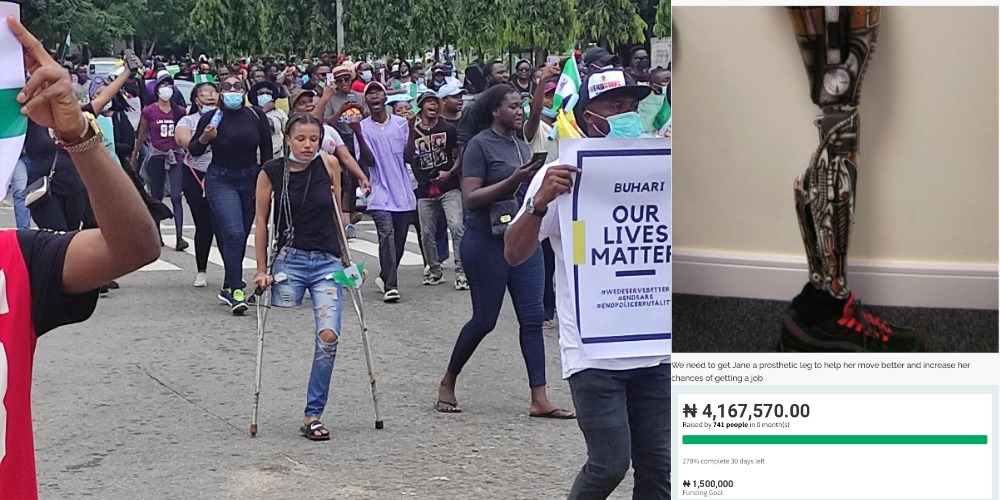 Nigerians Raise Over N4m For #EndSARS Protester In Need Of N1.5m Prosthetic Leg 1