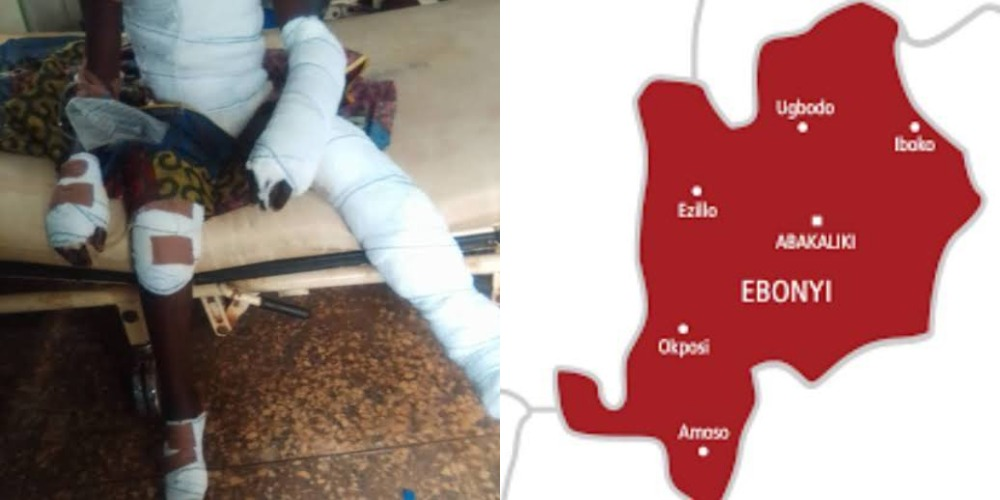 10-Year-Old Boy Tied Up And Thrown Into Fire For Allegedly Stealing Uncooked Rice In Ebonyi 1