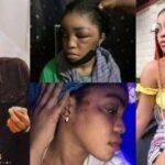 Lil Frosh's Girlfriend, Gift Camille Reacts After He Denied Beating Her Up Beyond Recognition 27