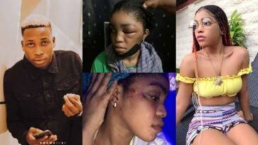 Lil Frosh's Girlfriend, Gift Camille Reacts After He Denied Beating Her Up Beyond Recognition 6