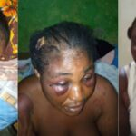 Woman Cries For Justice After Being Brutalised By Lawmaker Who Is Her Brother-In-Law [Video] 28